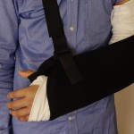 【ロードバイク落車】左肘骨折の現況など。